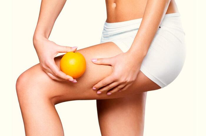 Celulitis: ¿Qué es?